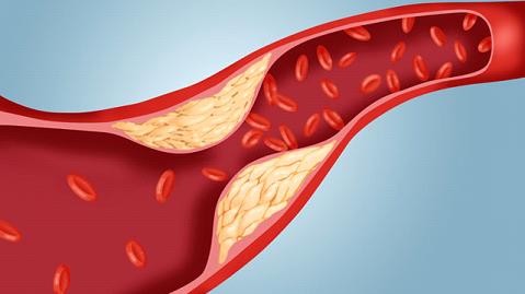 Kolesterol Seviyesini Düşürür