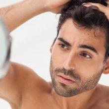 Erkeklerde Saç Dökülmesini Azaltmanın Yolları